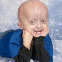 Progeria (Erken Yaşlanma)