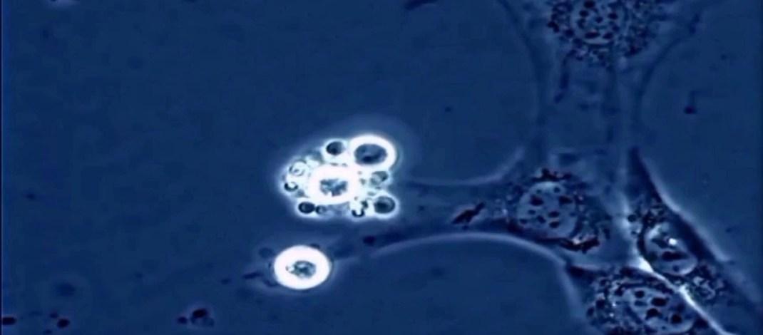 Yeni Bir Kanser Tedavisi Kemoterapiden Daha Etkili Olabilir