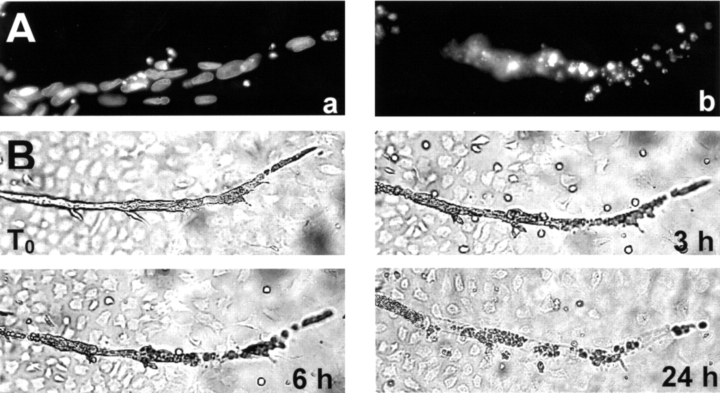 Antiangiogenic And Vascular Targeting Activity Of The Microtubule Destabilizing Trans