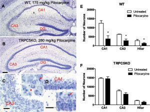 Canonical Transient Receptor Channel 5 (TRPC5) and TRPC14 Contribute to Seizure and