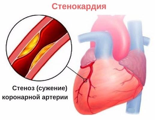 hipertenzija ir spazmalgonas hipertenzijos prevencijos straipsnis