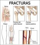 Fracturas: Qué son, causas, tipos, tratamiento y cuidado