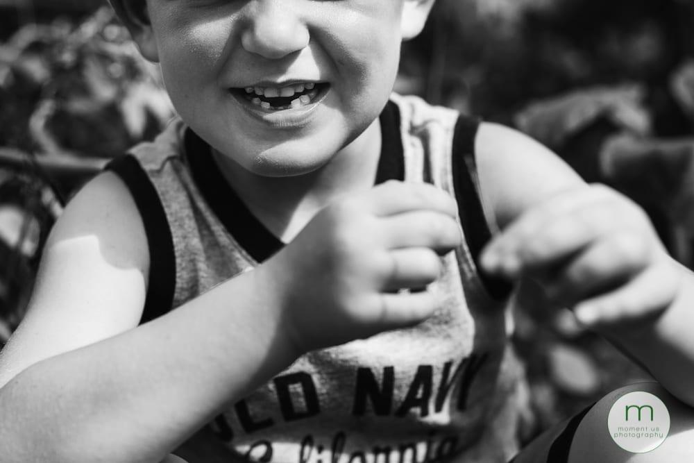Cornwall boy missing teeth