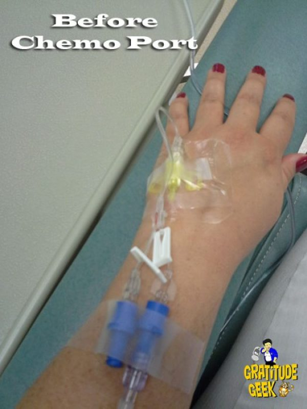 Before a chemo port, the infusion needle is inserted in your hand or arm.