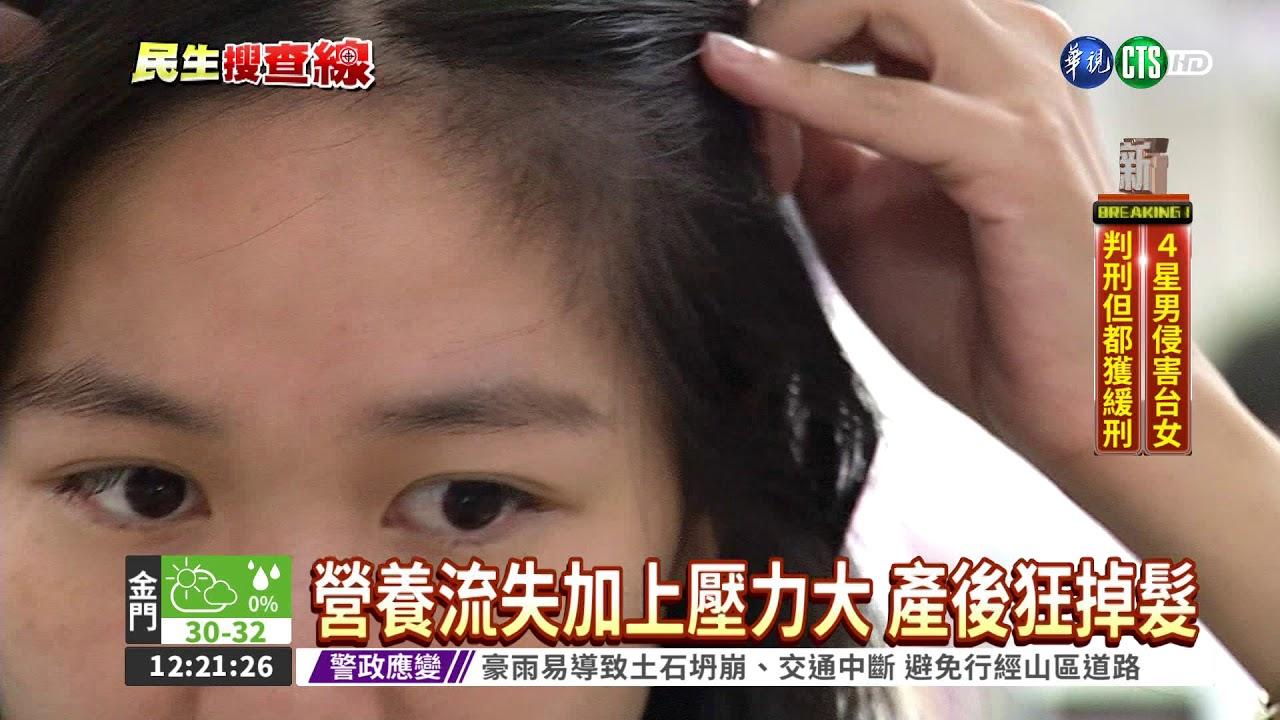 產後掉髮嚴重怎麼辦? 吃對食物就能改善