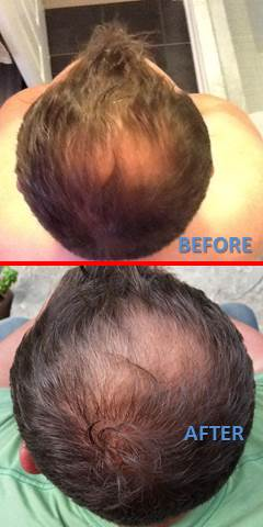 NIOXIN before and after results