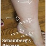 What is Schamberg's Disease During Pregnancy?
