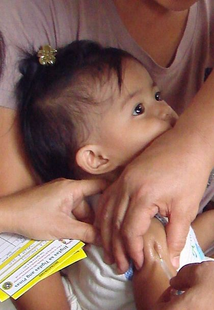 Measles (Tigdas) Causes, Symptoms, Treatment and Prevention