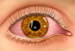 Pink Eye Illustration