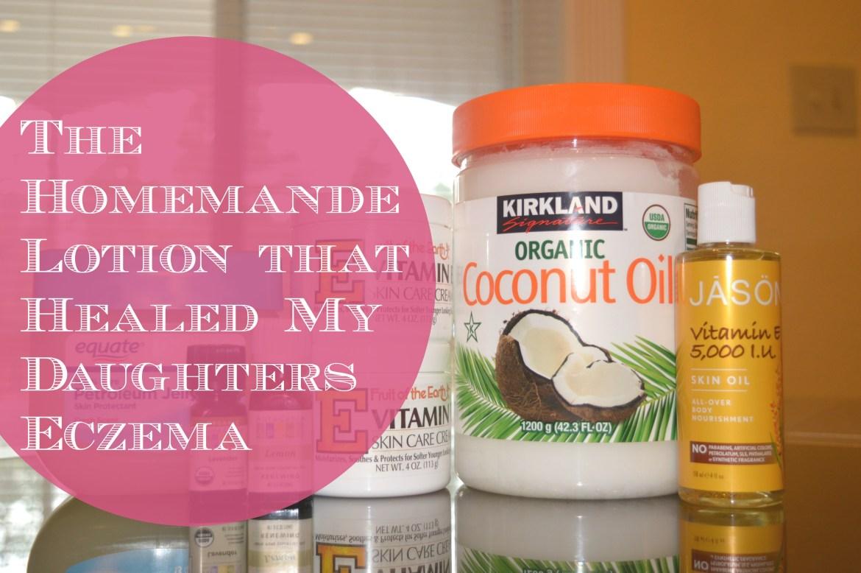 eczema-homemade-natural