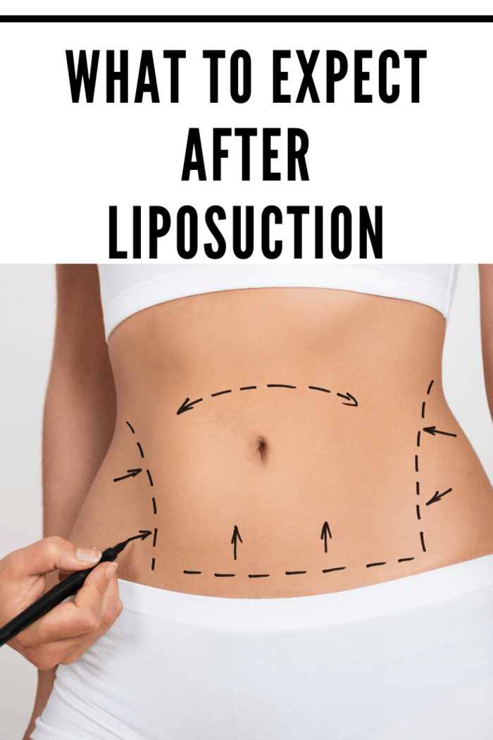 One of the more popular options that people choose is liposuction. This is a non-invasive cosmetic procedure where a plastic surgeon uses a unique tool to suck out stubborn fat cells that not even an intense workout could remove.