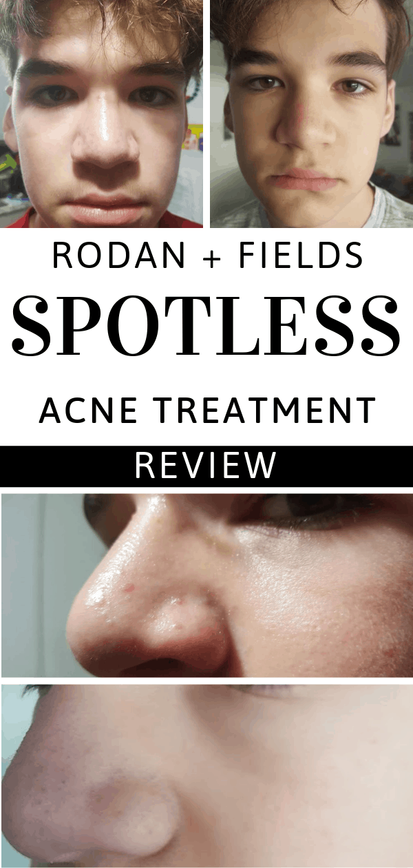 This Rodan + Fields SPOTLESS acne treatment review shows before and after photos. The improvement of two weeks is amazing.