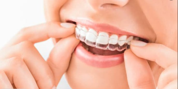 With the advancement of technology, braces don't have to be visible anymore. Here are some of the benefits of having invisible braces.