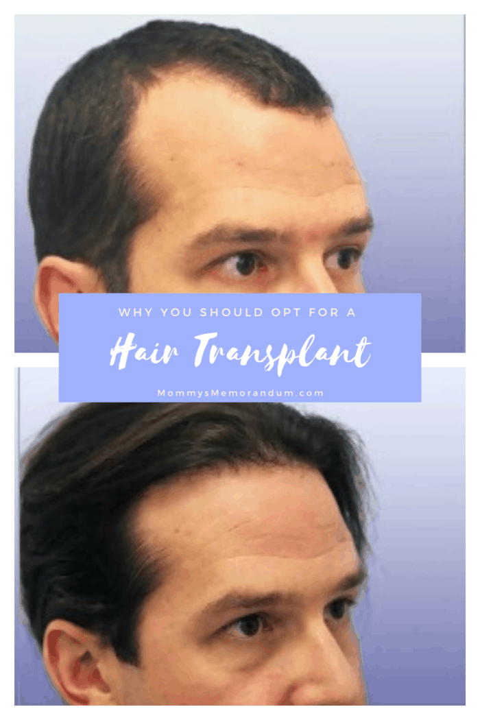 hair transplant procedure relocates healthy hair follicles from the back of the head and between the ears into balding areas.
