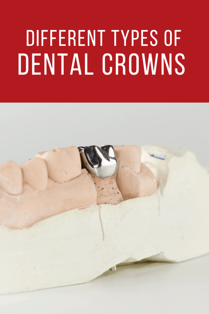 These dental crowns are made out of gold alloys which are actually a mixture of copper, gold and some different kinds of metals too.