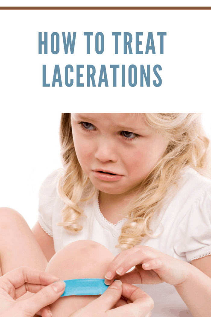 how to treat lacerations