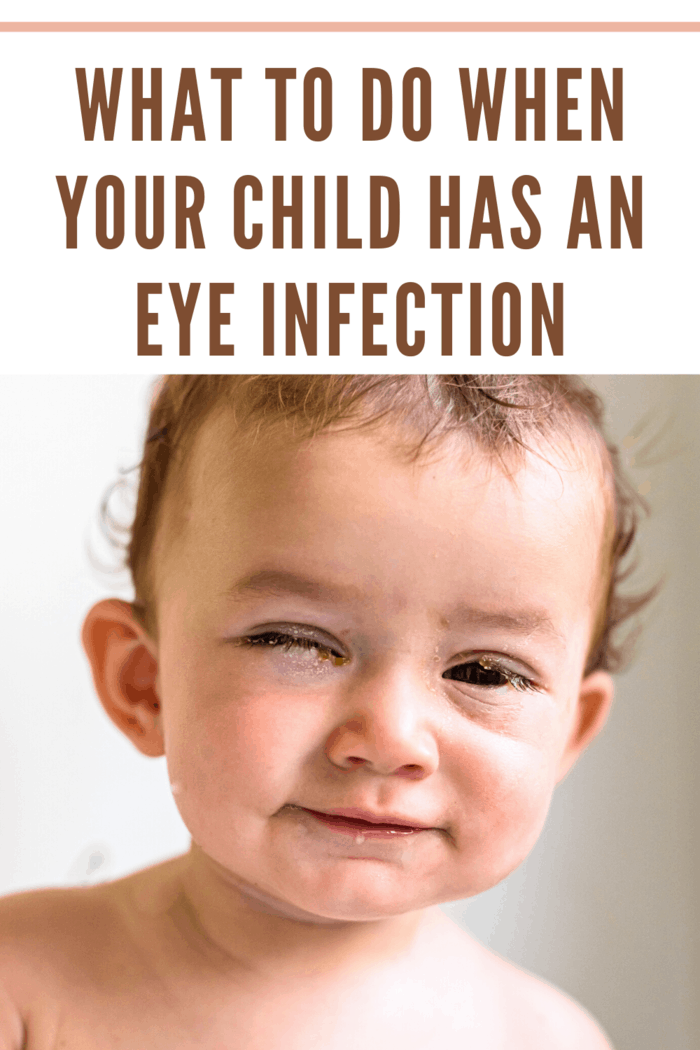 baby with eye infection