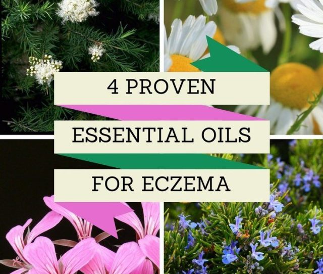 Still As Youll See Below There Are Good Reasons To Use Rosemary Essential Oil On Your Skin If You Experience Eczema Even If The Oil Is Not Reducing The