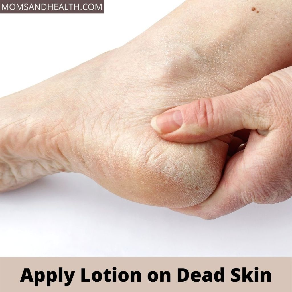 Apply Lotion on Dead Skin | Layers of Skin