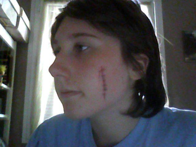 Cicatrice La Joue