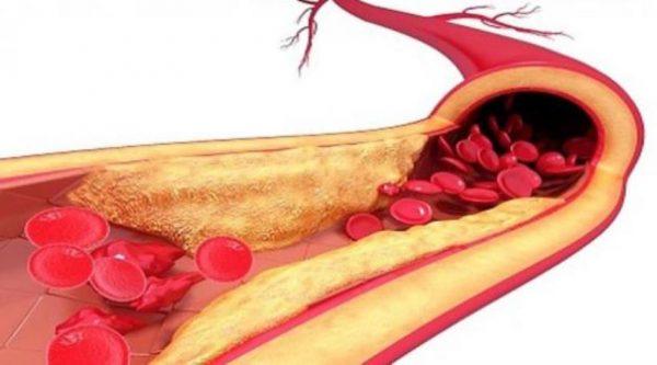 نسبة الكوليسترول في الدم