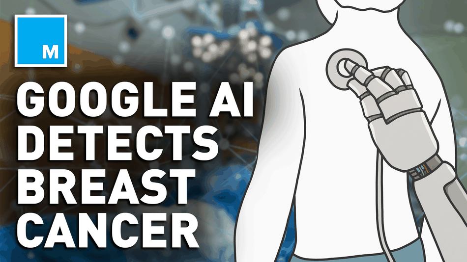 Study claims Google AI is more successful at breast cancer screenings than experts