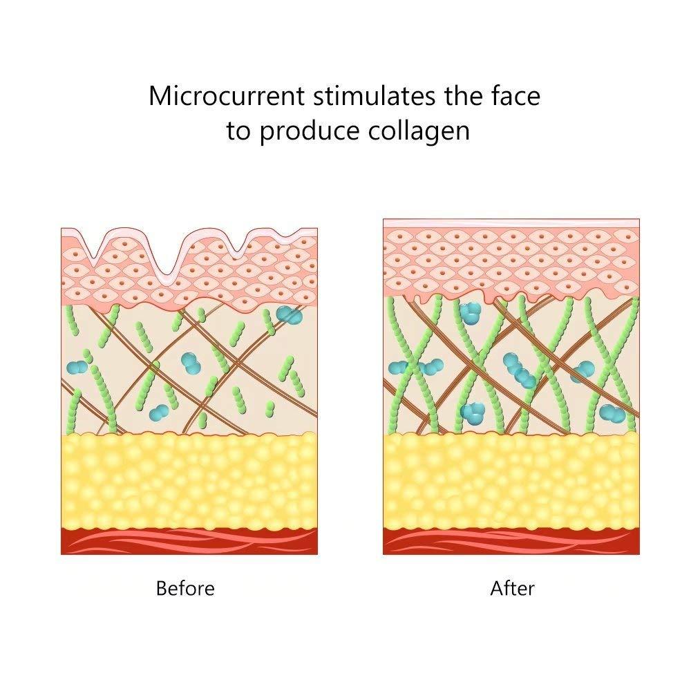 Face Lifting Machine Skin Tightening Toning Set Massager Antiaging Remove Wrinkle