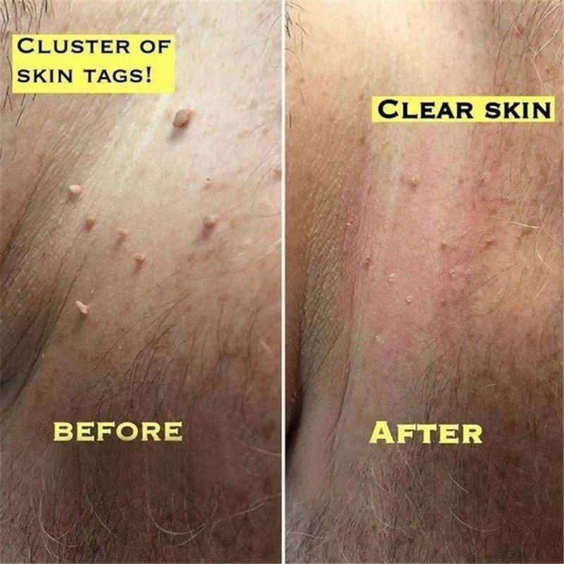 Health-Skin-Tag-Remover Genital Wart Mole Kill-Medical-Tu 12-Hours-Tu 3ml Natural