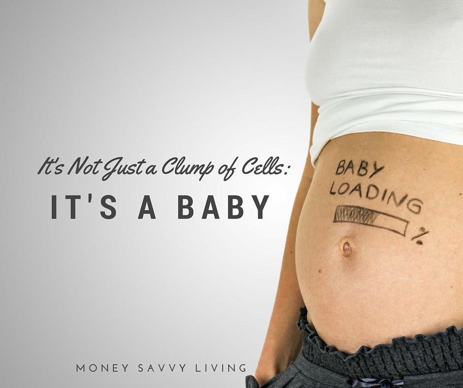 It's Not Just a Clump of Cells, It's A Baby // Dealing with the emotions of a baby miscarriage //  Money Savvy Living #miscarriage #baby