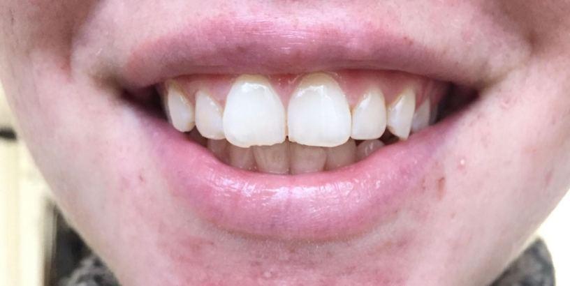 Before using Smile Brilliant
