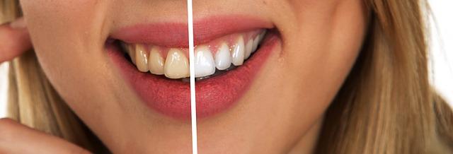 tooth 2414909 640 - Sănătatea dentară și stilul de viață (sondaj de opinie)