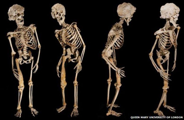 Calco dello scheletro di John Merrick