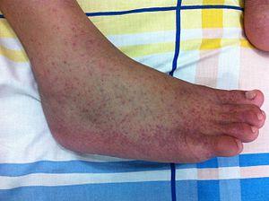 Patos de Minas tem o 1º óbito por Chikungunya; Vazante está com incidência alta de Dengue