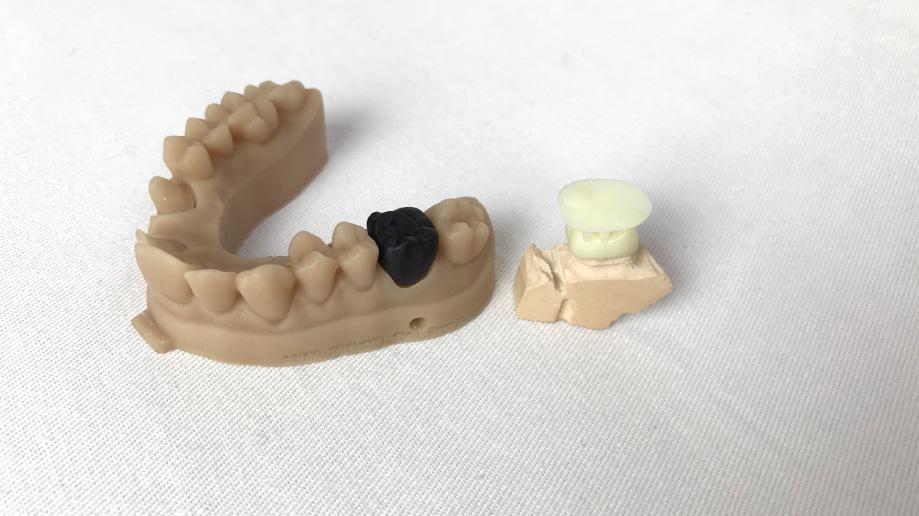 corone stampa 3d dentale sharebot monza