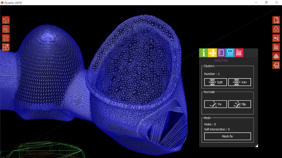 stampa 3d dentale digitalizzazione sharebot monza