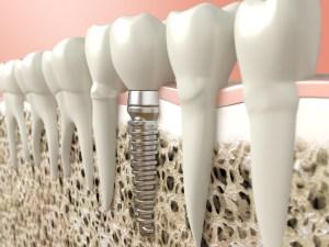 Implant Resorations