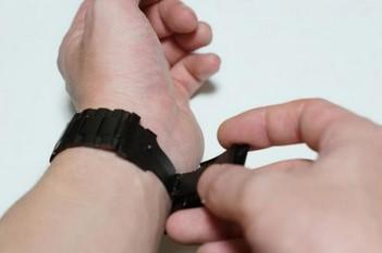 Apple watchを使い続けていたら金属アレルギーに!?