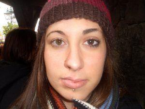 Cara con asimetría facial por parálisis del nervio facial
