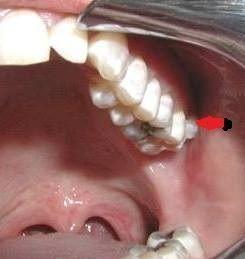 CAT izquierdo por Compresión de la mandíbula al llevarla hacia la derecha del paciente. Es una descripción del CAT y SMT