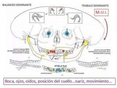 Esquema de Cráneo asimétrico por Masticación Unilateral Izquierda (MUI) que altera todos los sistemas propioceptivos que influyen en la postura. Es de destacar la asimetría del Plano de Oclusión, los Ángulos Funcionales Masticatorios Planas (AFMP), la distinta morfología de los dos lados del maxilar, de las dos ramas mandibulares y la morfología de las dos Articulaciones Témporo Mandibulares, la asimetría craneal con posición más caudal del lado izquierdo, la distinta posición de los huesos temporales que albergan el sentido del equilibrío, las distinta posición de los ojos...lo que da información propioceptiva discordante para la posición corporal