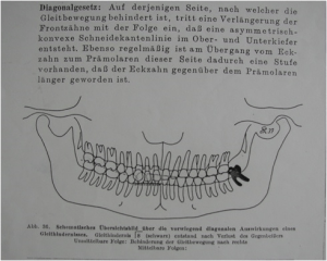 Esquema de maxila y mandíbula de K. Thieleman debido a masticación unilateral
