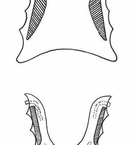 Esquema de placas con pistas planas según libro de RNO. Dr. Planas.