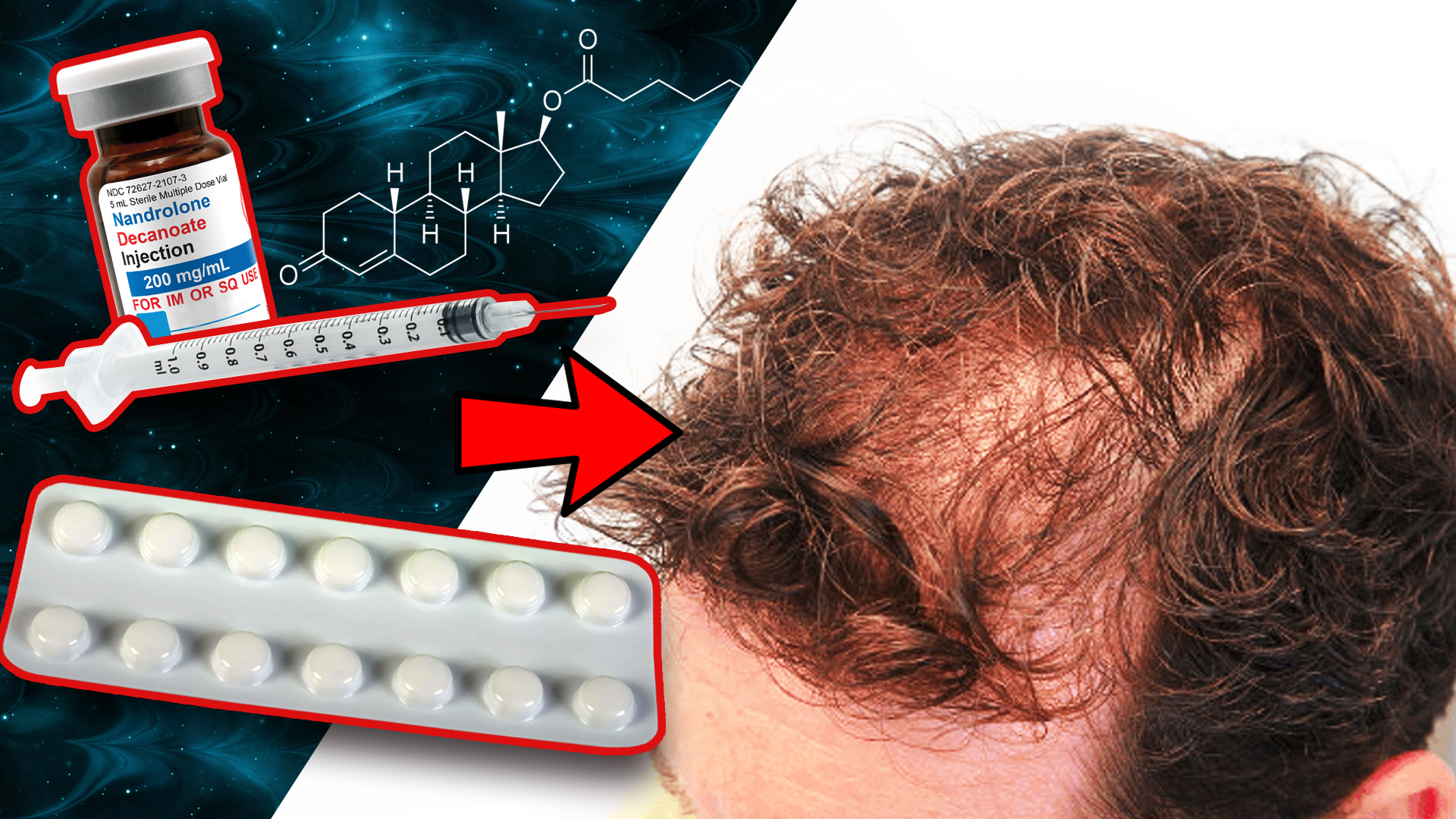 Deca with Finasteride effect on hair loss acceleration