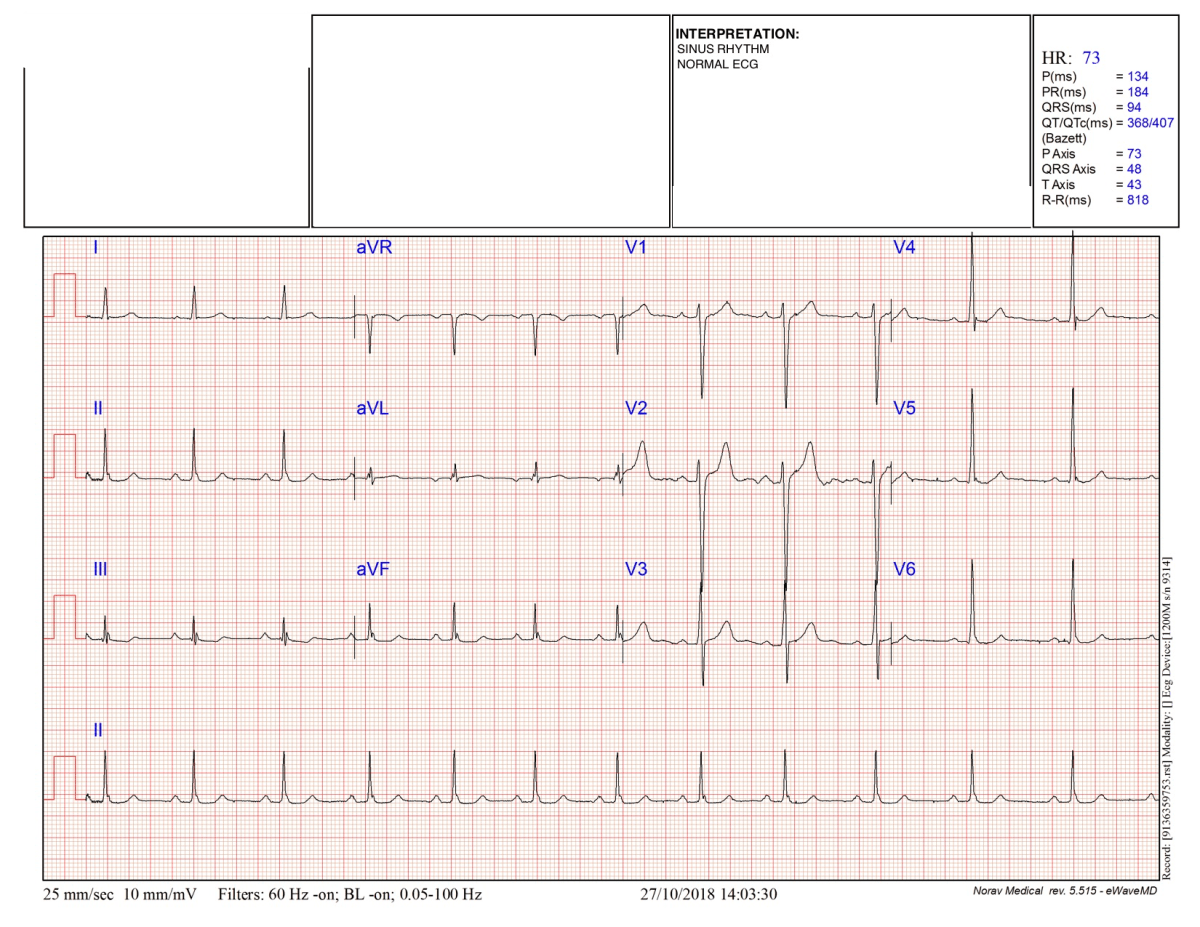 Electrocardiogram (EKG) results on the Vertical Diet