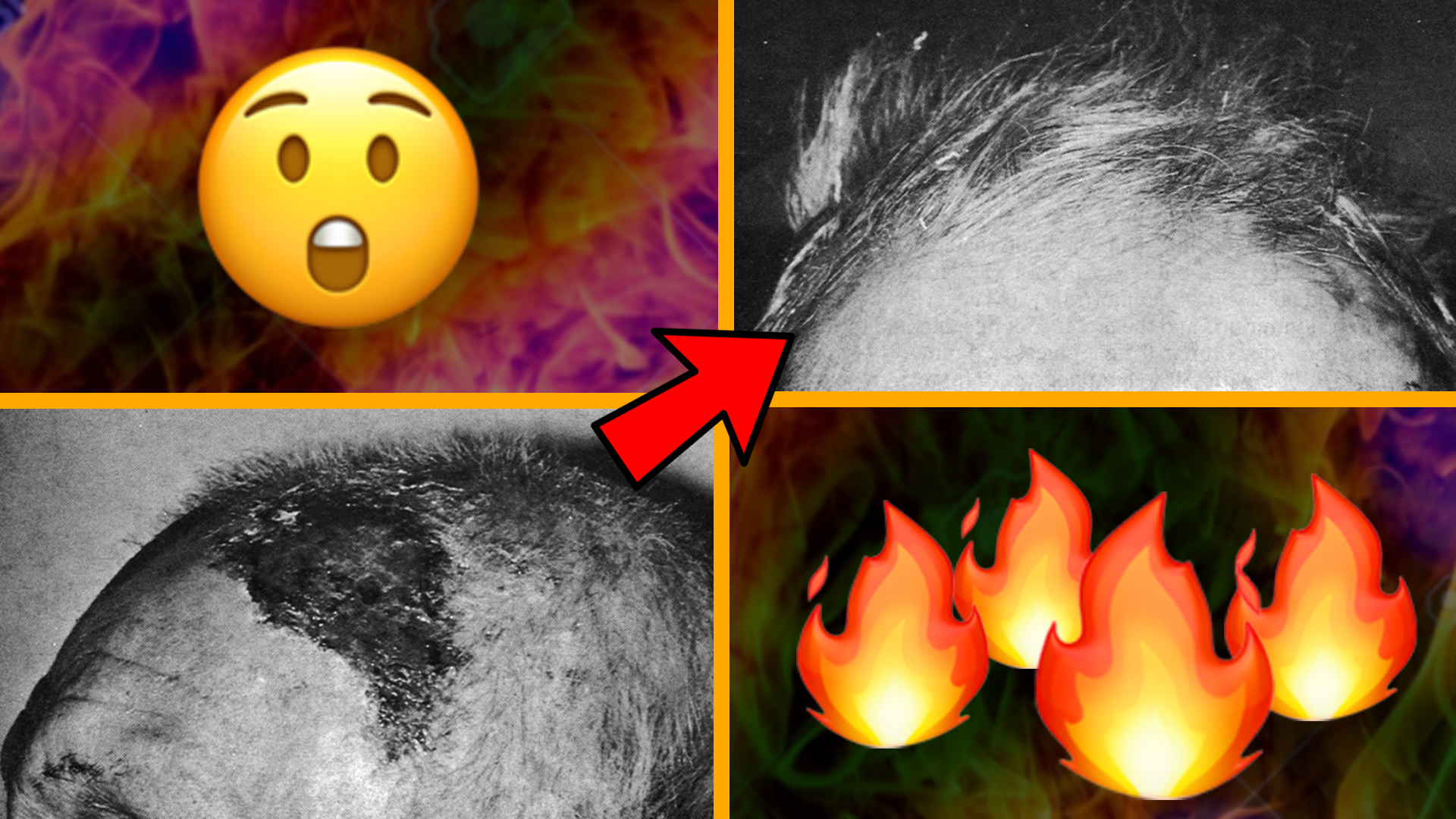 Picture of an old man's scalp burn and a picture of his hair regrowth after six weeks