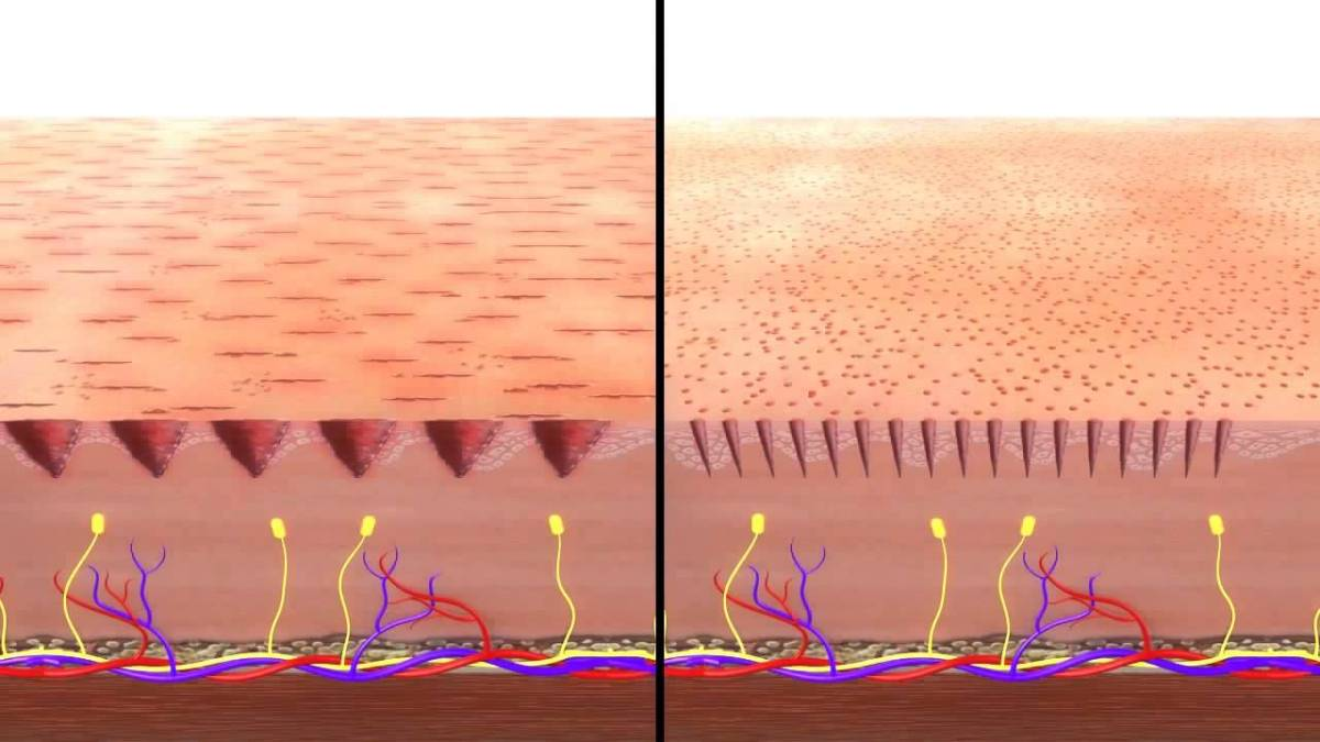 tears in scalp from dermarolling vs channels in scalp via dermapen