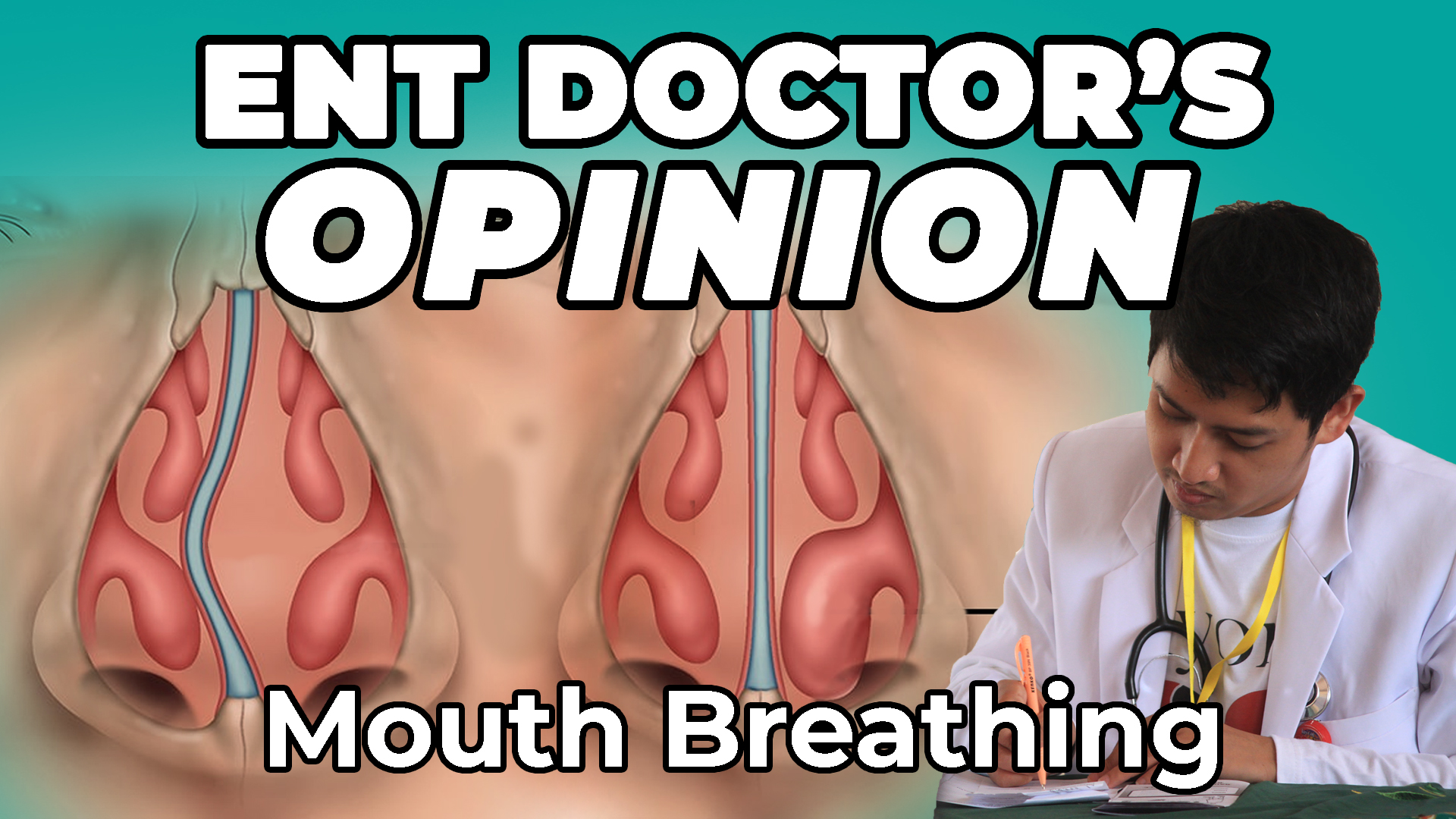 Deviated Septum Or Inflamed Turbinates The Cause Of Mouth Breathing? | Mewing Update | ENT Doctor's Opinion