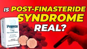 Box of Finasteride, 2 Finasteride pills and Blood Work: Is Post Finasteride Syndrome real?