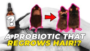 A Probiotic That Regrows Hair - My Review Of Lactobacillus Reuteri ATCC PTA 6475
