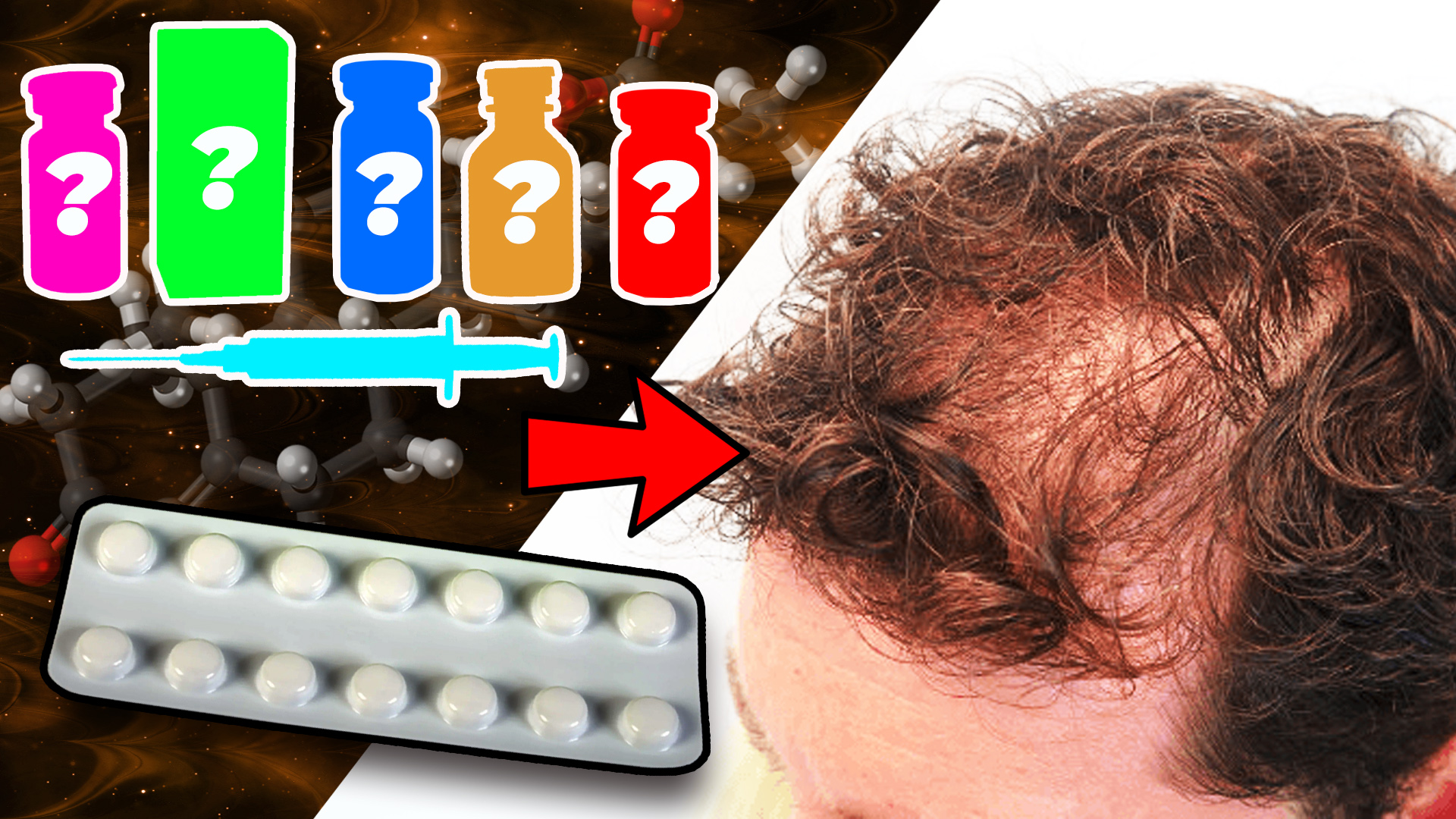 Bottles of different anabolic steroids beside a blister pack of Finasteride and a male scalp experiencing androgenic alopecia